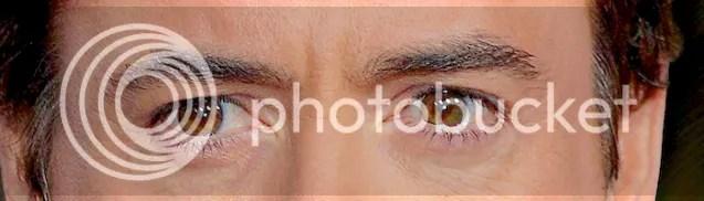Central heterochromia iridum