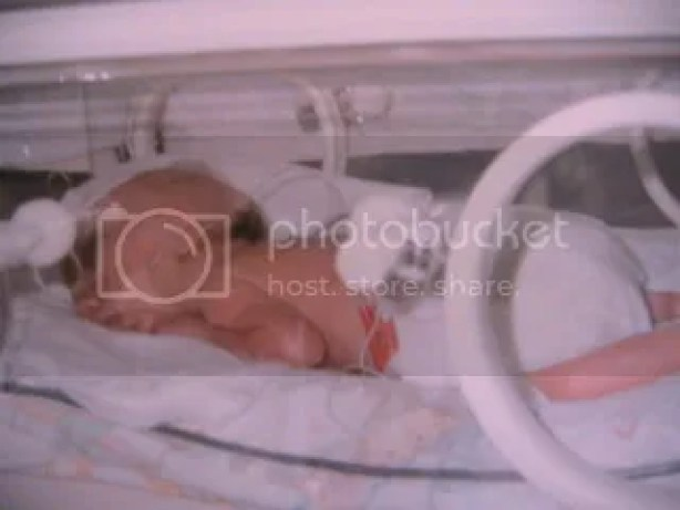 NICU picture 2, Weighing 3 pounds.  June '91