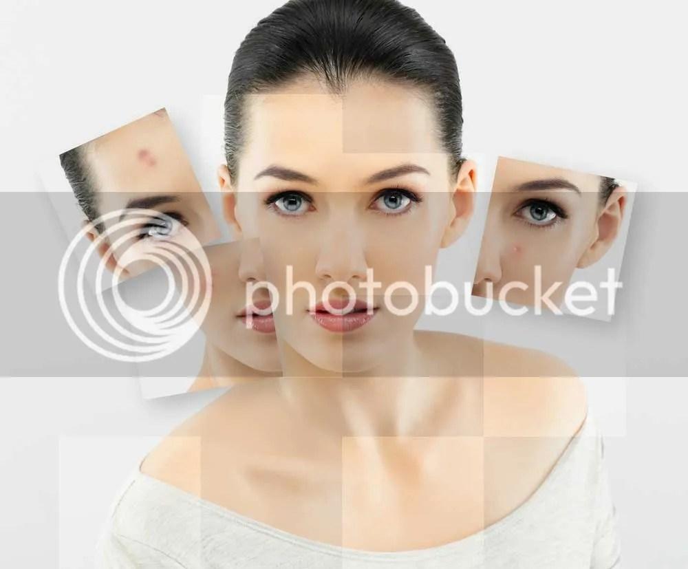 Menghilangkan Bintik-Bintik Di Wajah Secara Alami
