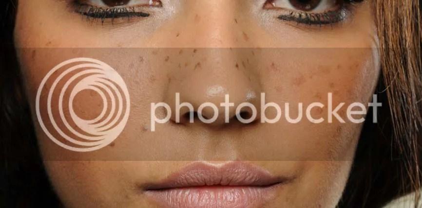 Cara Alami Menghilangkan Flek Hitam Pada Wajah