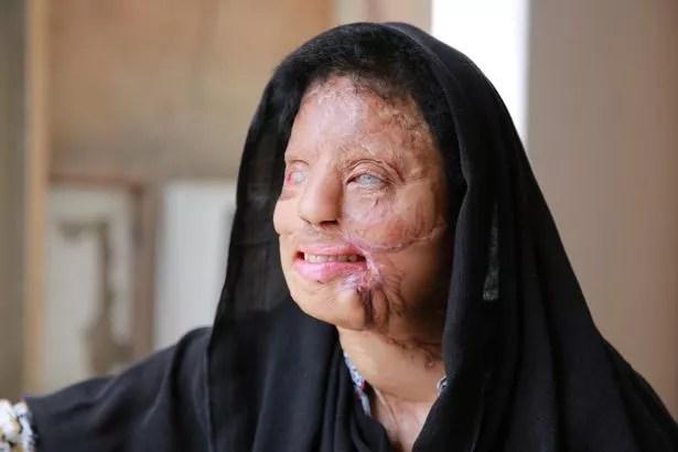 Indian acid attack survivor Sonali Mukherjee at her residence in New Delhi, India