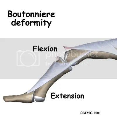 Boutonniere deformity from eOrthopod