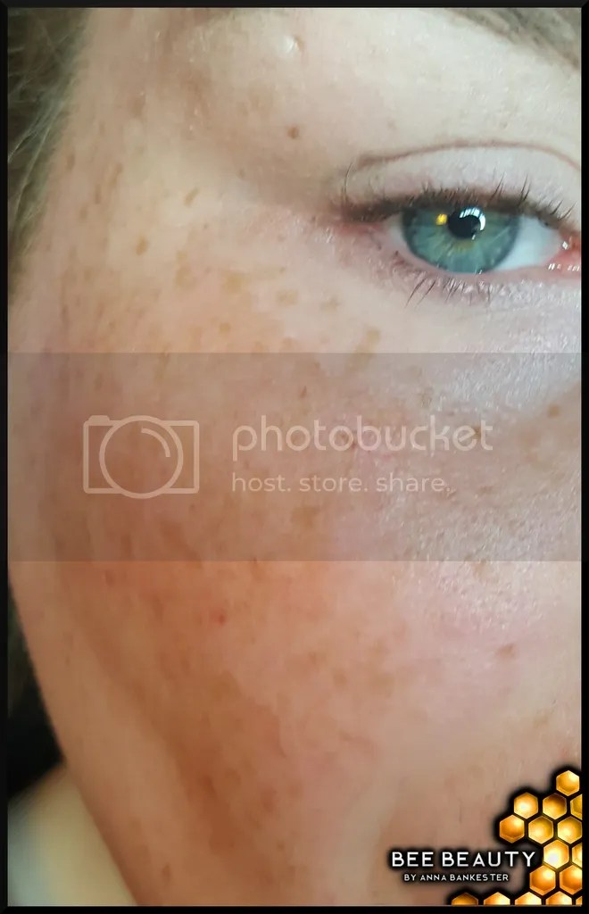 photo cleanskin_zpsrhlpp9yj.jpg