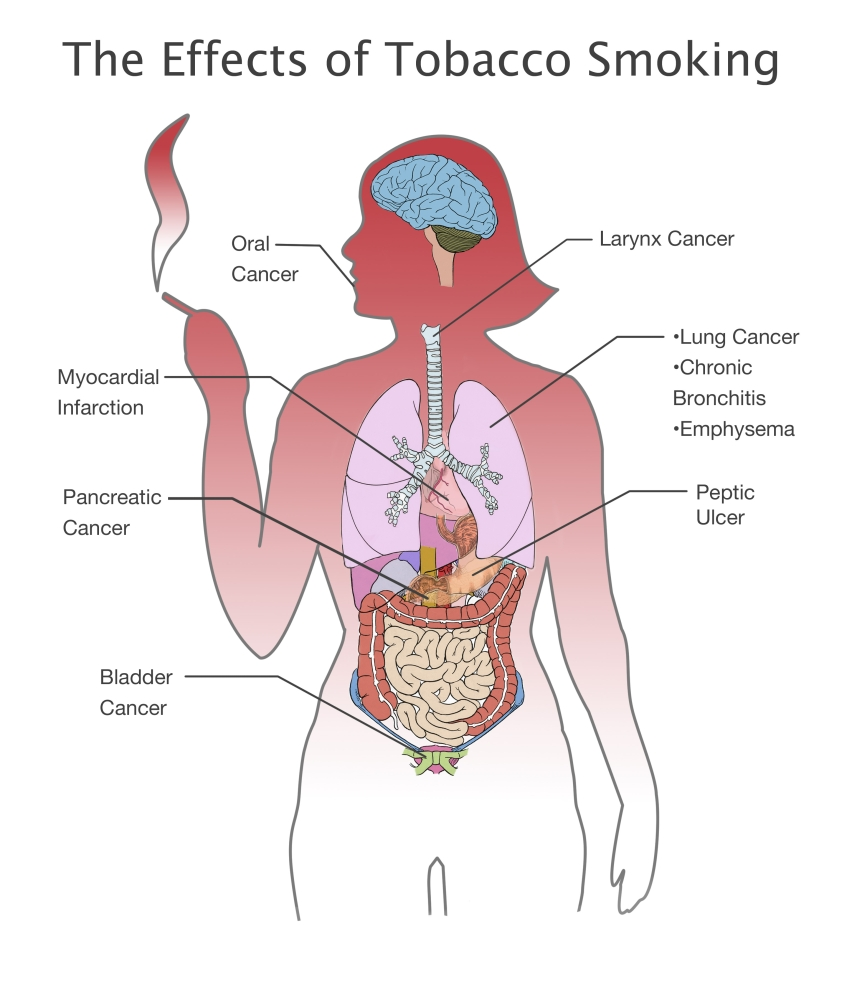 effects of tobacco smoking poster print by spencer suttonscience source