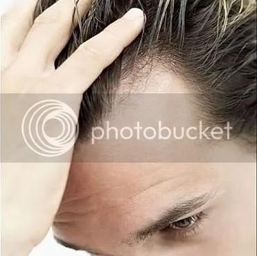 Sudden bald patch child