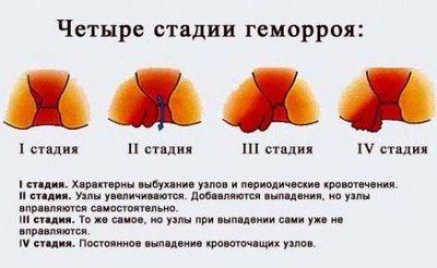 Геморой. Медицинские городские центры klinika.zrenie-glaz.ru