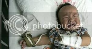 Baby undergoing dialysis