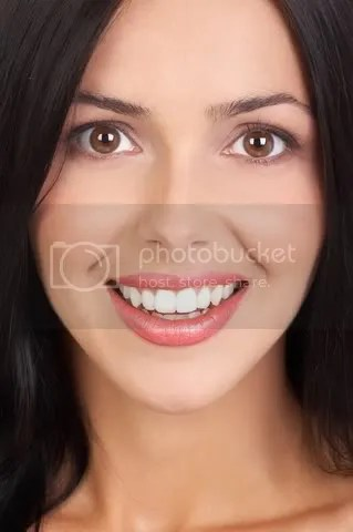 boynton beach veneers