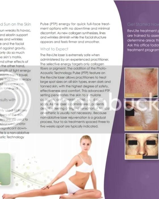 RevLite Laser Treatment