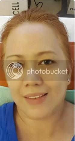 Skin Touch Aesthetic & Slimming Center CryoContour Procedure Treatment