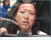 demonstration by victim Wang Yuzhi - force-feeding