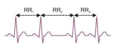 Graphic showing the RR or NN endpoints within an ECG graph