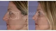 nose job nj