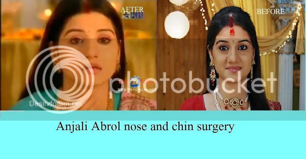 nose job tip