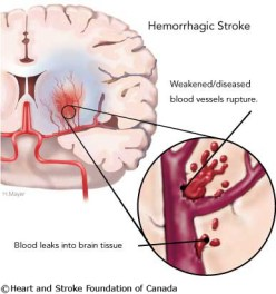 hemorrhagic-stroke