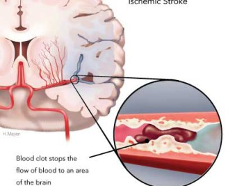 ischemic-stroke