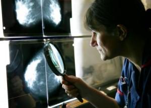 mammogram-300x214