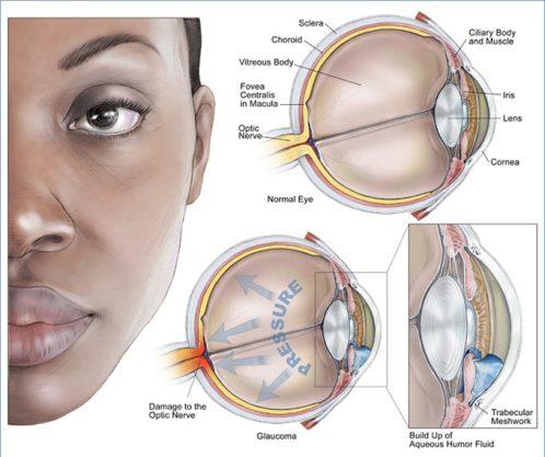 Glaucoma_