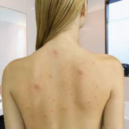 back-acne