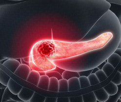 Why are Patients with Pancreatic Cancer so Sick?