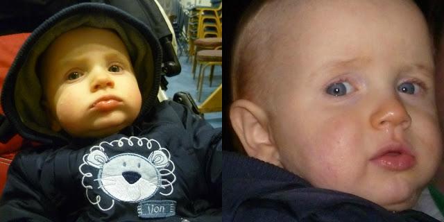 Jack: Eleven Months On
