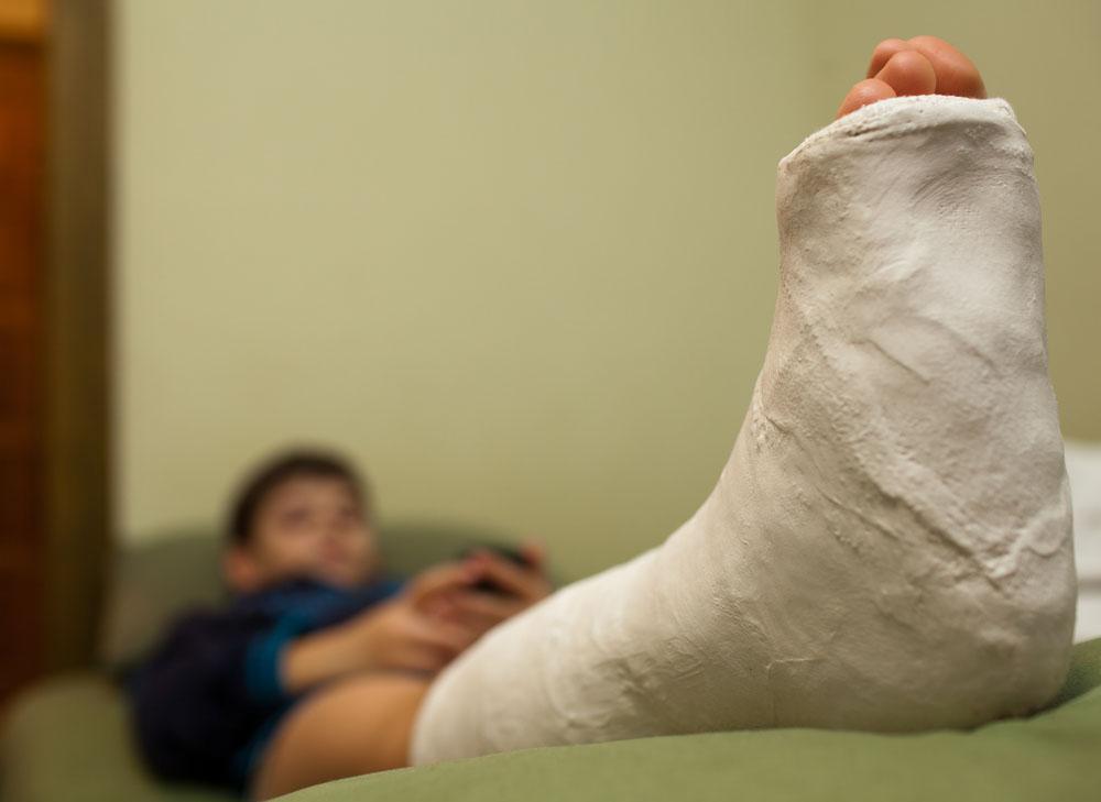Don't Walk on a Broken Leg