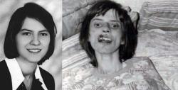 Kisah Sedih Seorang Gadis Bernama Anneliese Michel Yang Akhirnya Mati Akibat Dirasuk