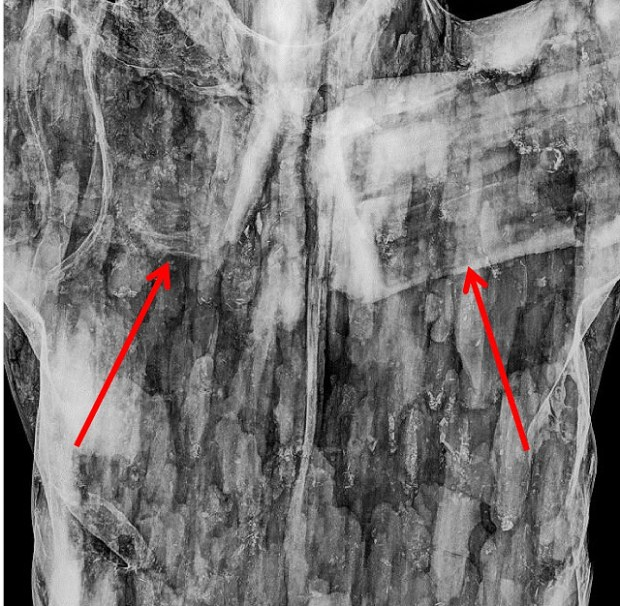 Santo Cristo La Grita torso radiografía