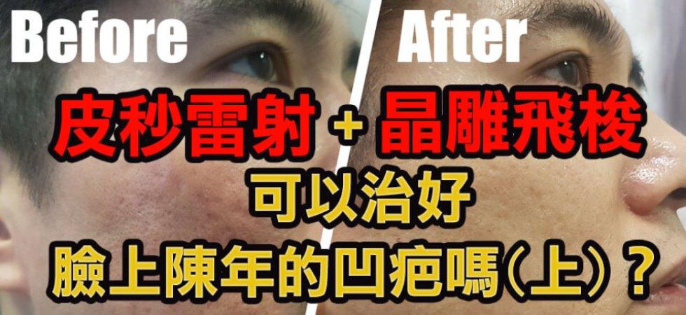 皮秒雷射+晶雕飛梭可以治好臉上陳年的凹疤嗎(上)?