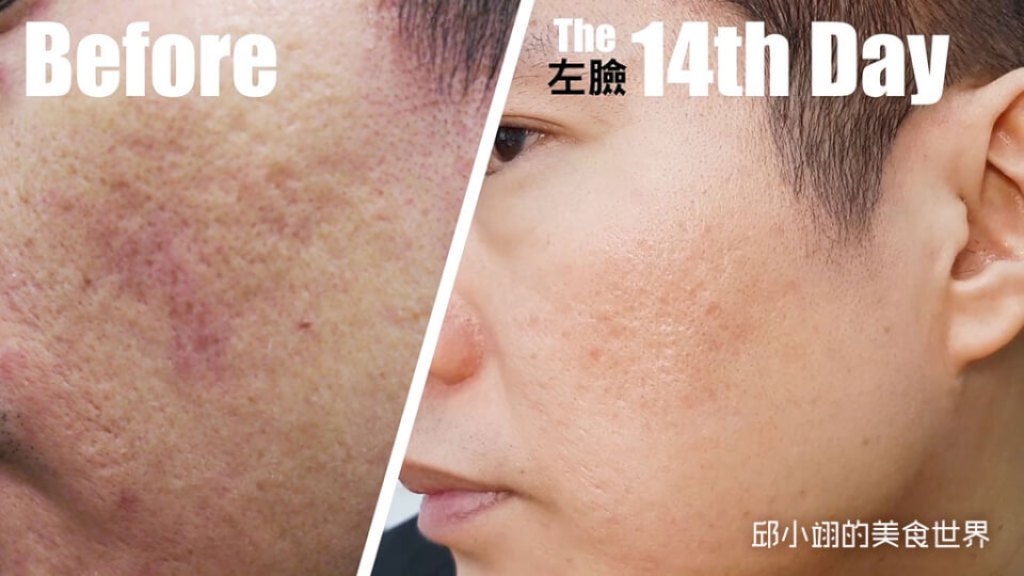 皮秒雷射+晶雕飛梭可以治好臉上的凹疤嗎(下)?