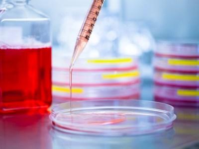 Detección de biomarcador Gaucher no afectado por una molécula similar, revela un estudio