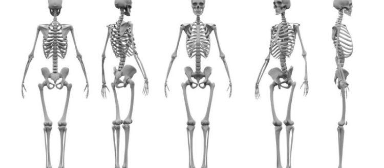 Los impactos de la enfermedad de Gaucher en el sistema esquelético y el futuro del tratamiento