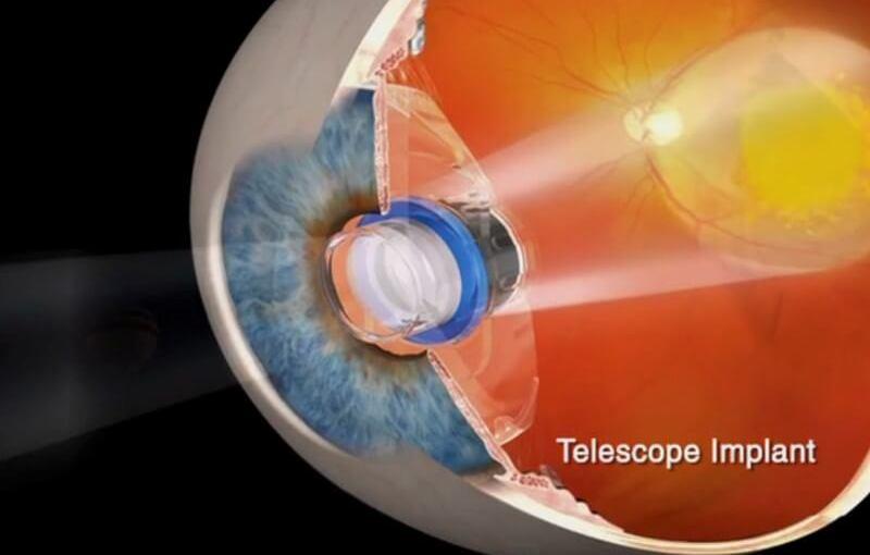 NVISION Eye Centers a posé avec succès son premier implant télescope miniature
