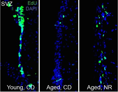 NR treatment rescues neural stem cell decline in aged mice