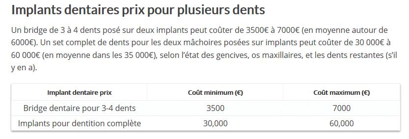 Source : http://www.dentaly.org/prix-dun-implant-dentaire-le-guide-complet/#Implants_dentaires_prix_pour_plusieurs_dents