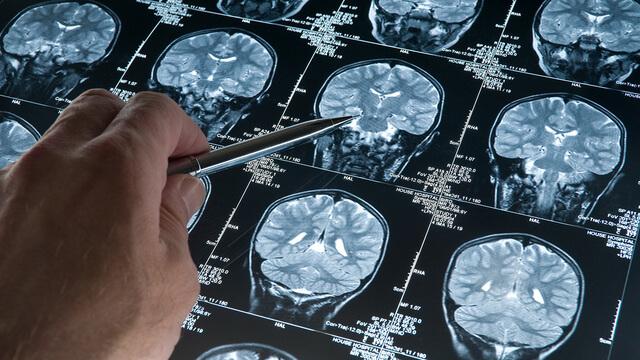 Un médicament inverse de manière significative la perte de mémoire