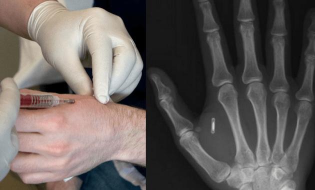 biohacking implant microship RFID Chip puce