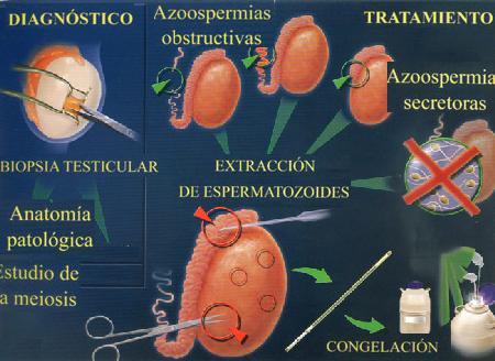 Imagen Biopsia testicular