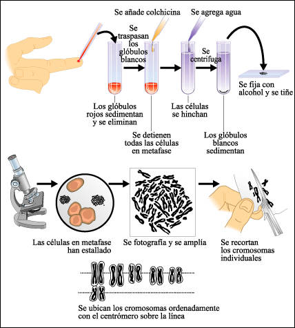 Preparación de un cariotipo humano