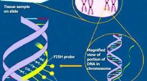 ¿Cómo puedo saber si mis espermatozoides tienen anomalías en la carga genética?