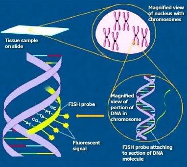 FISH (Fluorescence in situ Hybridization)