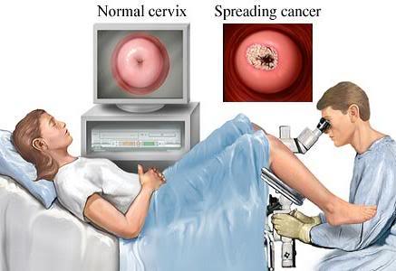 Imagen Exámen genital