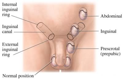 Imagen ruta normal que deben seguir hacia el escroto