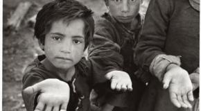 Bebés nacen con desnutrición en el mundo