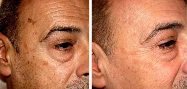 أسباب البقع السوداء في الوجه