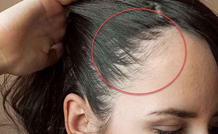 علاج فراغات الشعر الأمامية للنساء