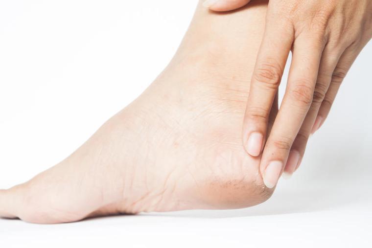 علاج تشققات القدمين الشديدة