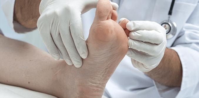 علاج فطريات القدم بين الأصابع
