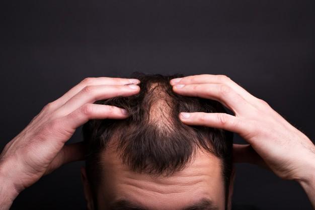 علاج ألم فروة الرأس وتساقط الشعر