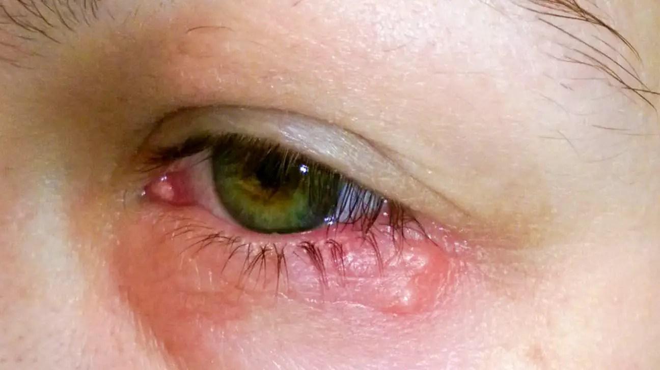 Vitamin Deficiency Eyes